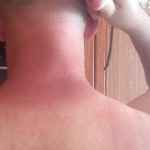 Sunburn in neck after 1 day